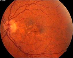 Augenhintergrund bei feuchter Maculadegeneration