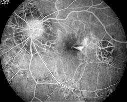 Angiographische Darstellung